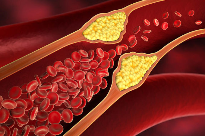 How to Safeguard Yourselves from High Cholesterol Problems